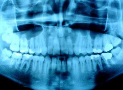 tandenknarsen5